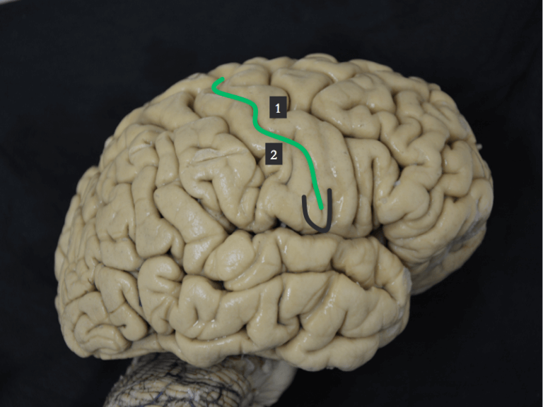 subcentral gyrus
